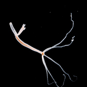 Hydra magnipapillata
